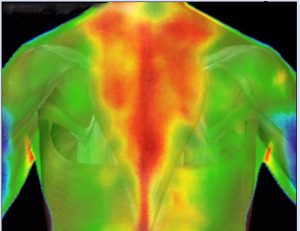 Medical Thermography Research Imaging Upper Back Pain Holistic Integrated Healthcare Natural Medicine Center Lakeland Central Florida